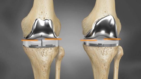 El Acero Inoxidable En Implantes Quir 250 Rgicos Blog Jn Aceros